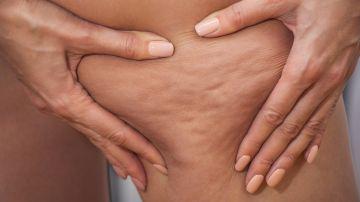Encuentra el tratamiento para adelgazar y eliminar la celulitis, adecuado para ti, entre estas opciones disponibles en Groupon